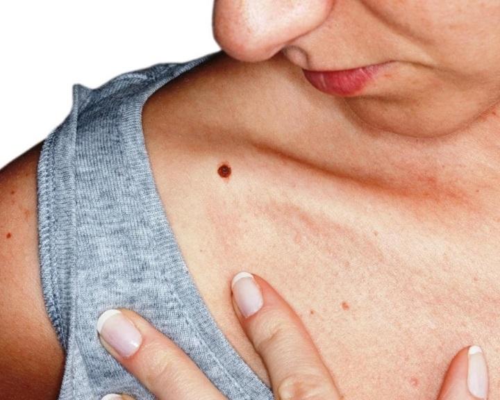 A melanoma korai stádiumát kimutató vértesztet fejlesztettek ki ausztrál kutatók