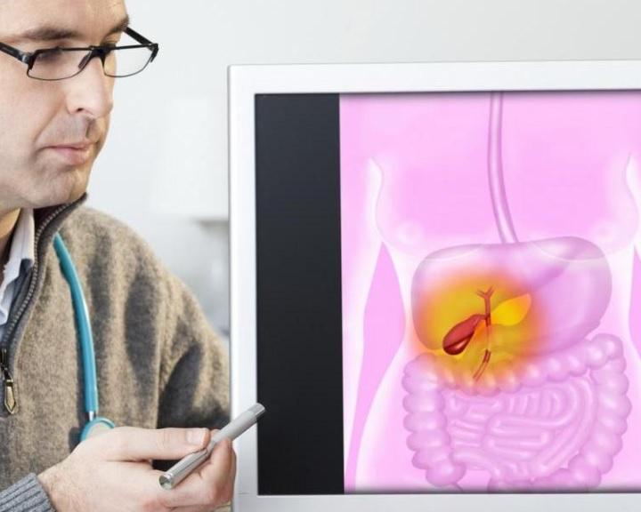 Az epesav okozta megbetegedések terápiájának új irányait mutatták be magyar kutatók