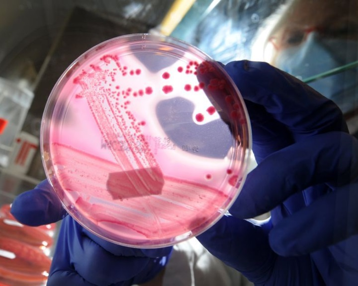 Bioaktív üveg segíthet az E. coli-fertőzés ellen