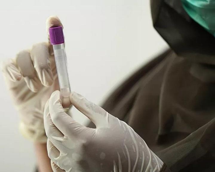 Egy kutatás szerint laboratóriumból szabadult el a koronavírus