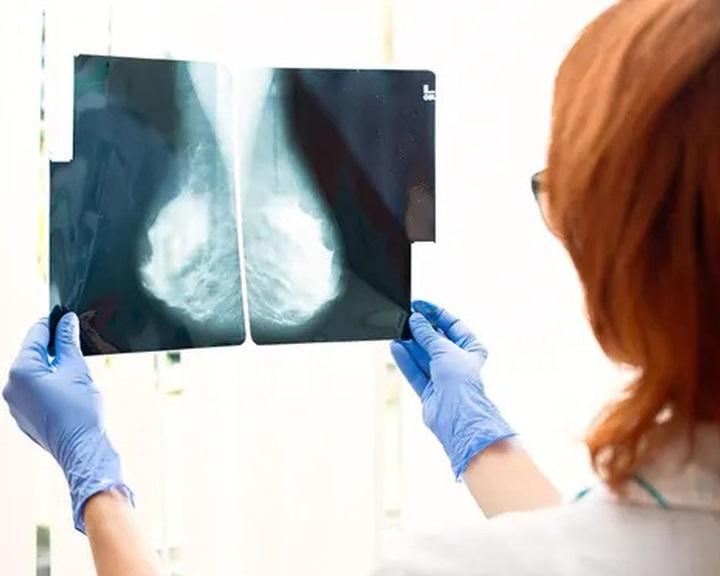 Egy új gyógyszer hatékony lehet az örökletes mellrák elleni küzdelemben