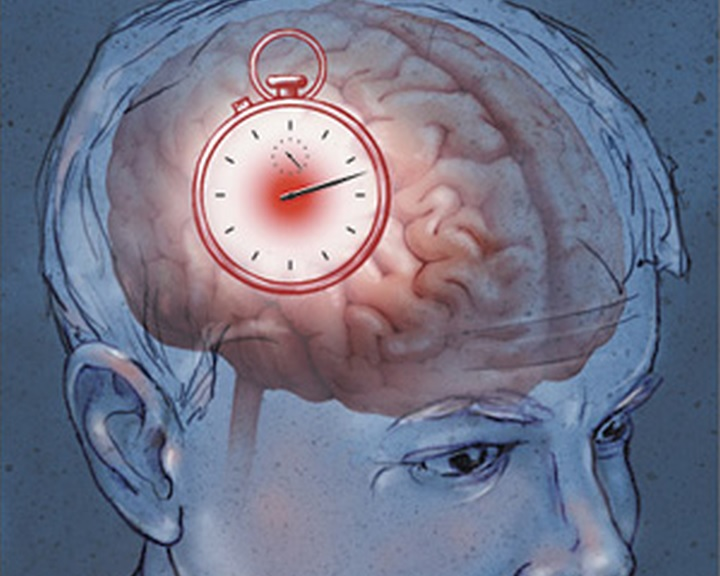 Új eljárást alkalmaztak akut stroke kezelésére a kaposvári kórházban