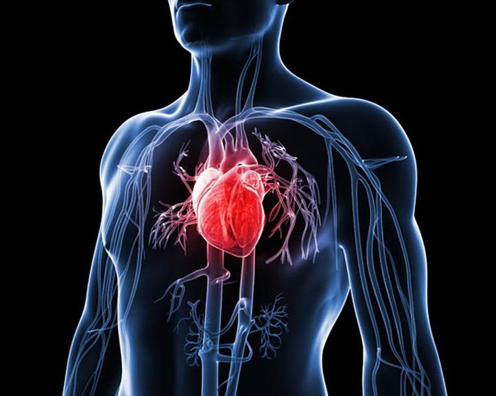 Nagyobb a szívroham kockázata még az amúgy egészséges elhízottaknál is
