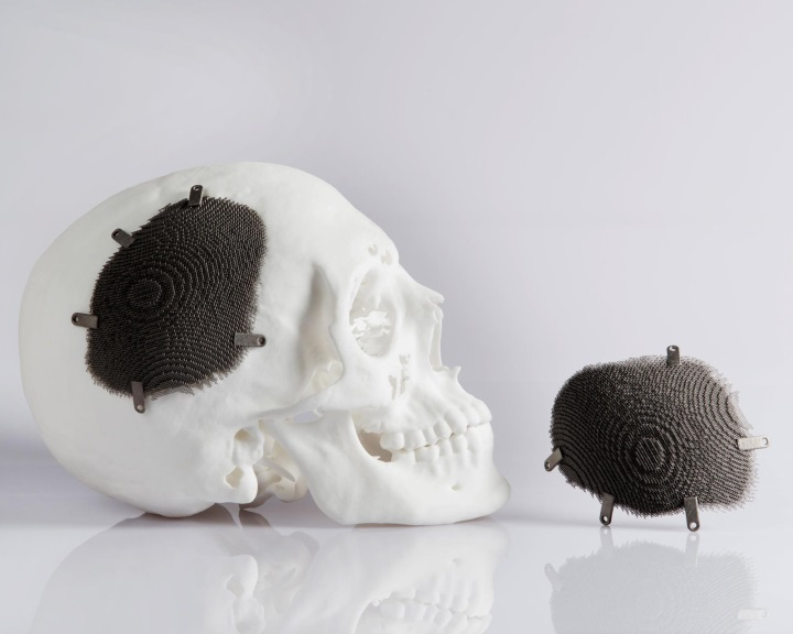Terjed a gyógyászatban a 3D-nyomtatás