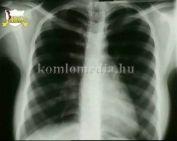 Onkológiai csoport kezdte működését a komlói kórházban (DR. István Miklós)