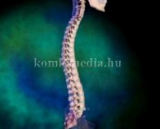 A gerincbetegségekről és a gerincfájdalmakról kérdeztük a szakorvost (Dr. Papp Zsuzsanna)