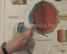 Egészségpercek - A szürke- és zöldhályog (Dr. Váczi Ilona)