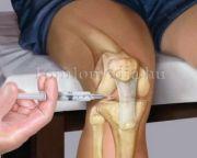 Egészségpercek - A reumatológiáról (Dr. Nardai Ilona)