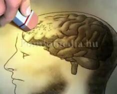 Egészségpercek - A demencia és amnézia (Dr. Szipli Szilvia)